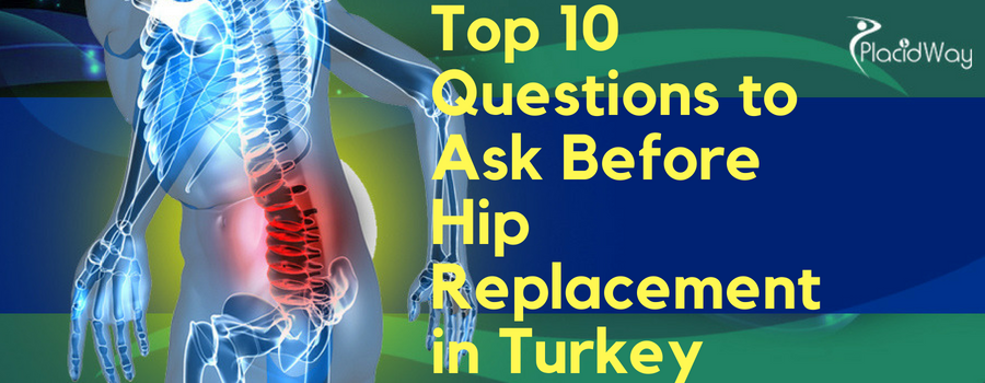Top 10 Questions to Ask before Hip Replacement Surgery in Turkey