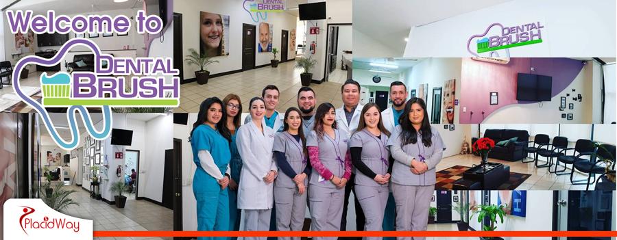 Dental Brush, Orthodontics and Smile Correction, Mexicali, Mexico
