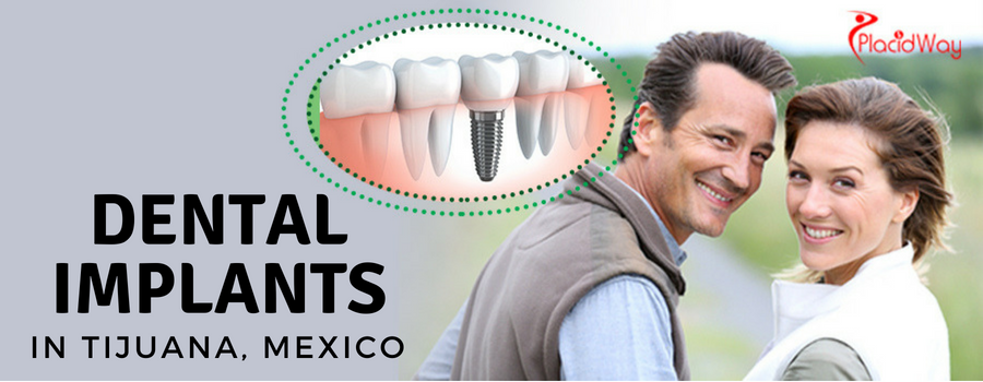 Dental Implants in Tijuana, Mexico