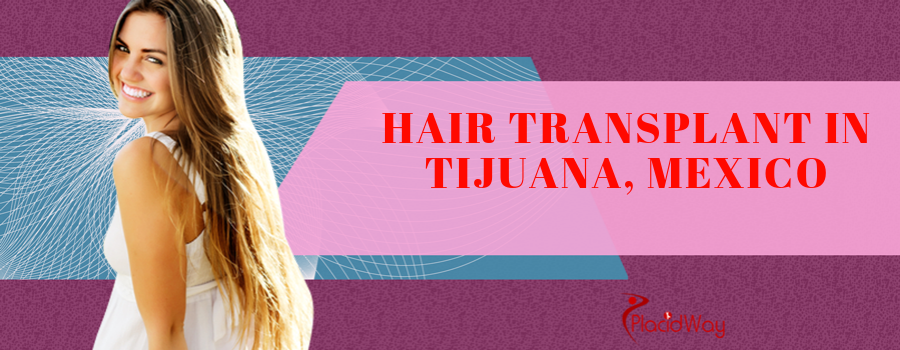 Hair Transplant in Tijuana, Mexico