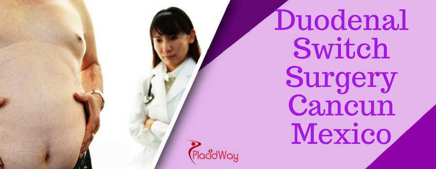 Duodenal Switch Surgery Cancun Mexico