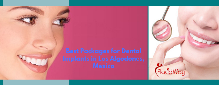 Best Packages for Dental Implants in Los Algodones, Mexico