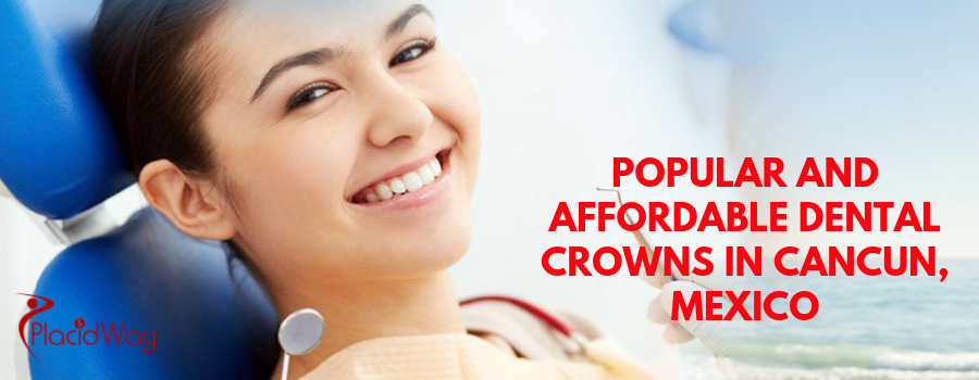 POPULAR AND AFFORDABLE DENTAL CROWNS IN CANCUN, MEXICO