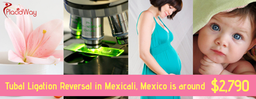 Cost Tubal Ligation Reversal in Mexicali, Mexico