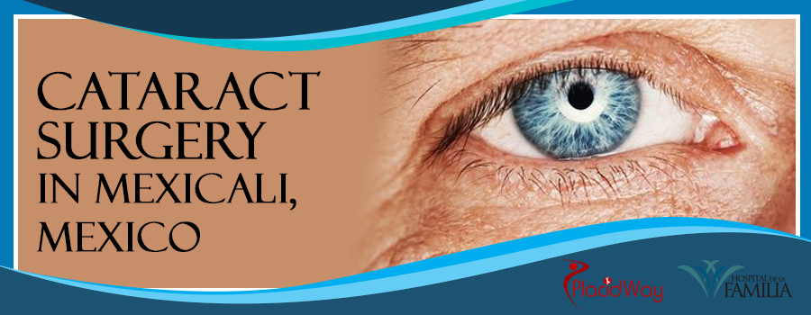 Cataract Surgery in Mexicali, Mexico