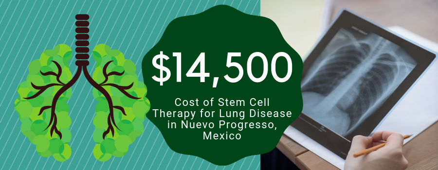 Cost Stem Cell Therapy for Lung Disease in Nuevo Progresso, Mexico