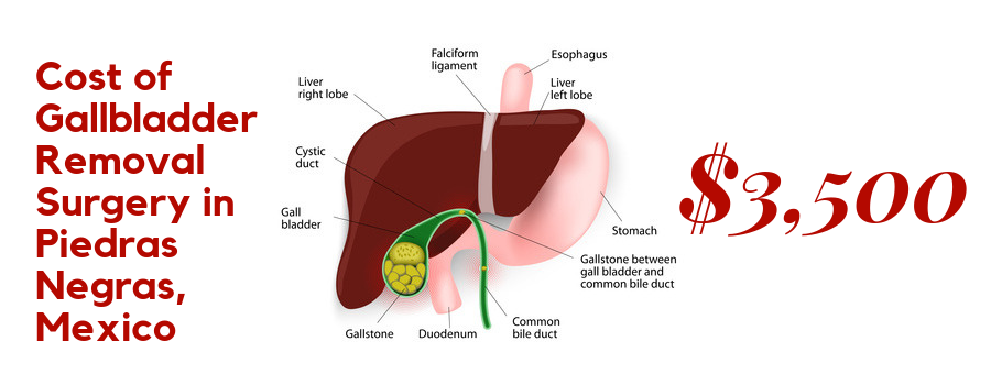 Cost of Gallbladder Removal Surgery in Piedras Negras, Mexico