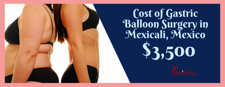 Cost of Gastric Balloon Surgery in Mexicali, Mexico