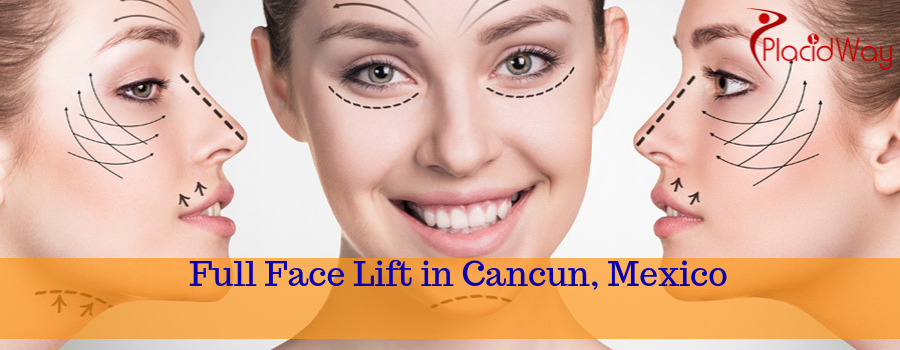 Full Face Lift in Cancun, Mexico