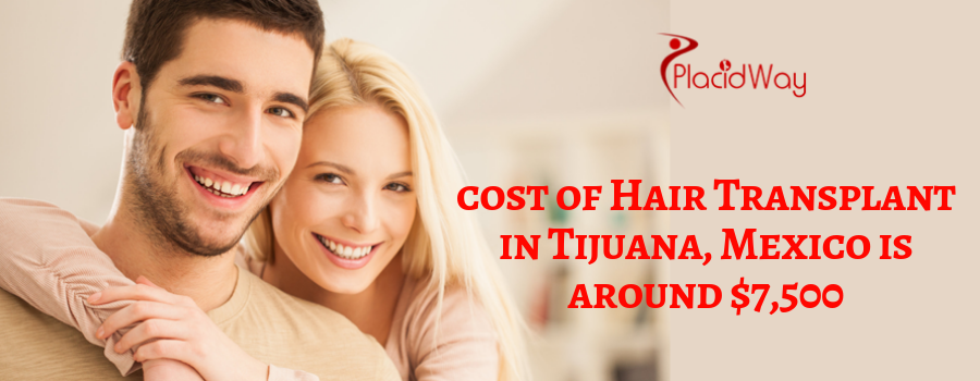 cost of Hair Transplant in Tijuana, Mexico is around $7,500