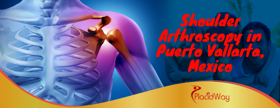 Shoulder Arthroscopy in Puerto Vallarta, Mexico