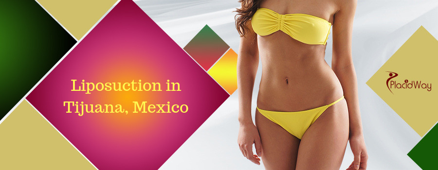 Liposuction in Tijuana, Mexico