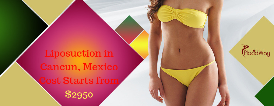 Liposuction in Cancun, Mexico Cost