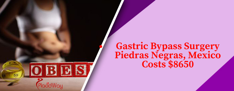 Gastric Bypass Surgery Piedras Negras, Mexico Cost