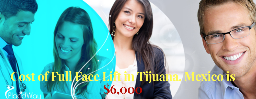 Cost of Full Face Lift in Tijuana, Mexico