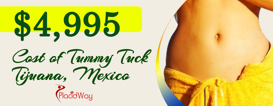 Cost of Tummy Tuck in Tijuana, Mexico