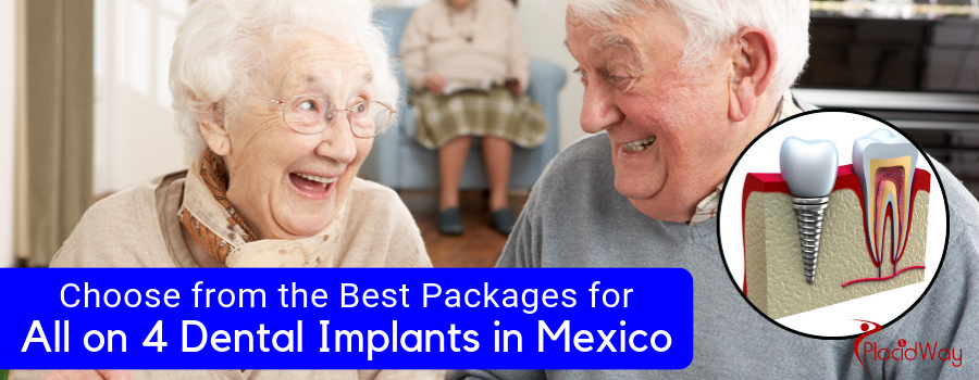 Choose from the Best Packages for All on 4 Dental Implants in Mexico