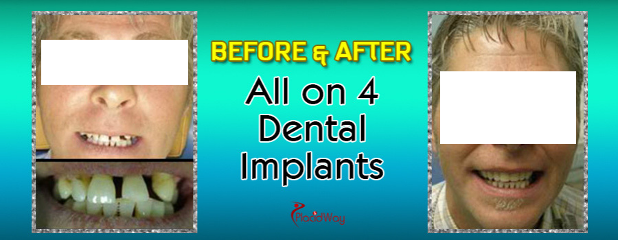Before and After All on 4 Dental Implants in Mexico