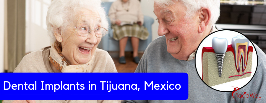 Dental Implant Package in Tijuana, Mexico
