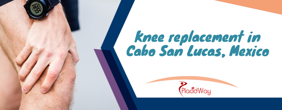 Knee replacement in Cabo San Lucas, Mexico