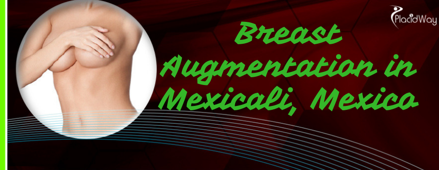 Breast Augmentation in Mexicali, Mexico