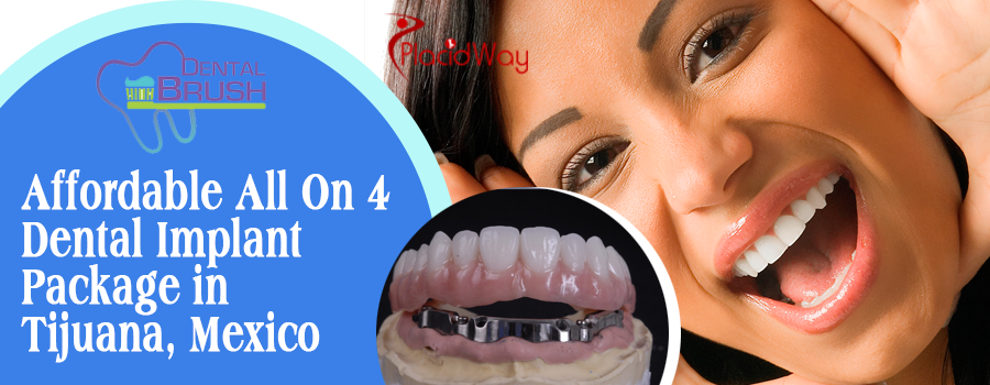 All on 4 package at Dental Brush Tijuana, Mexico