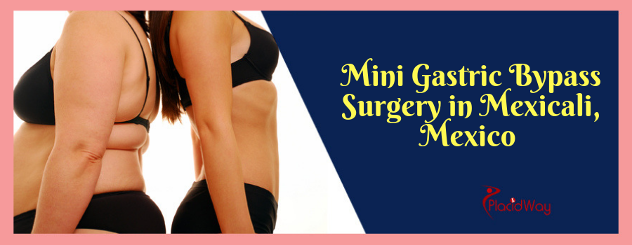 Mini Gastric Bypass Surgery in Mexicali, Mexico