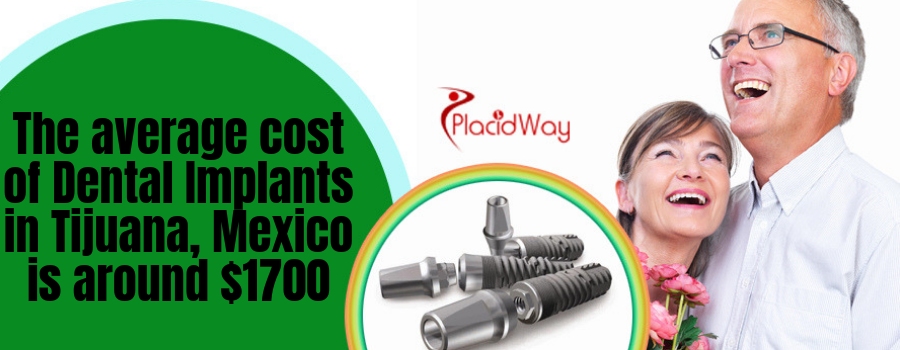 The average cost of Dental Implants in Tijuana, Mexico is around $1700