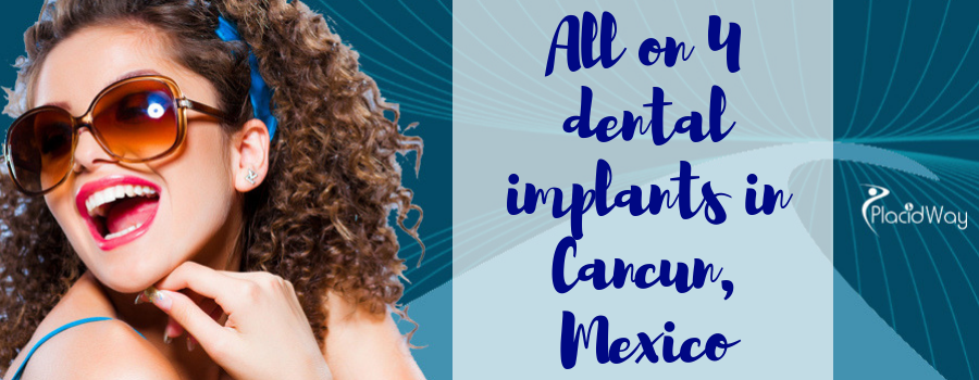 All on 4 dental implants in Cancun, Mexico