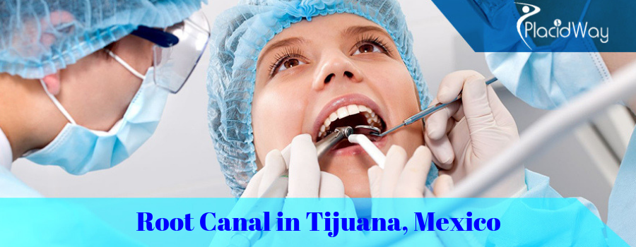 Root Canal in Tijuana, Mexico