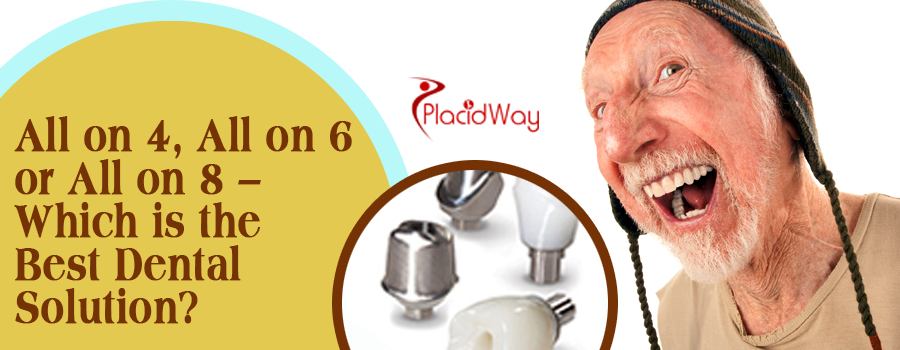 All on 4, All on 6 or All on 8 – Which is the Best Dental Solution?