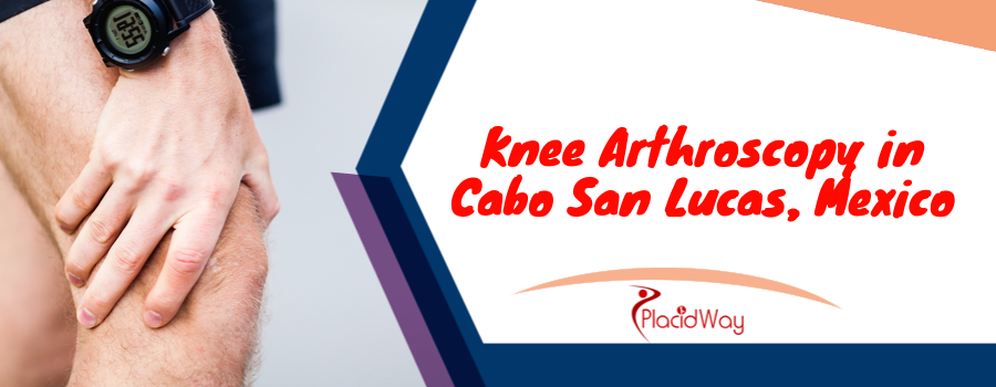Knee Arthroscopy in Cabo San Lucas, Mexico