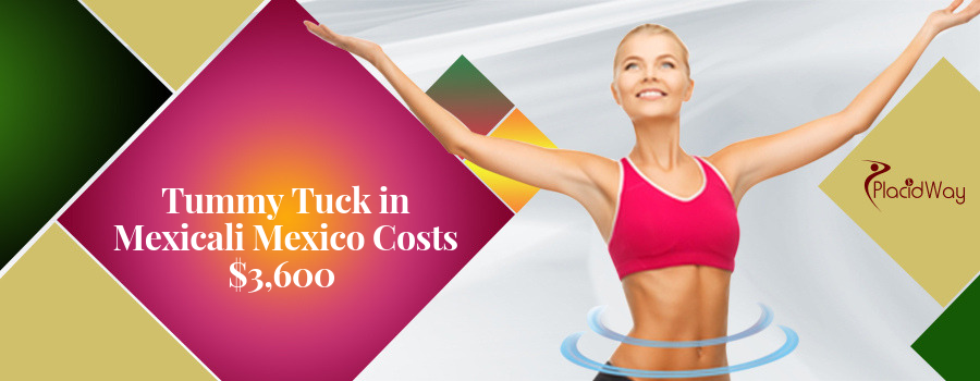 Tummy Ruck Package in Mexicali, Mexico Cost
