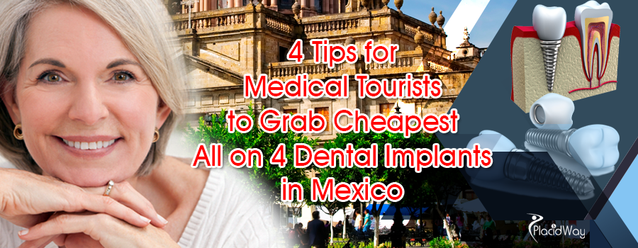 4 Tips for Medical Tourists to Grab Cheapest All on 4 Dental Implants in Mexico