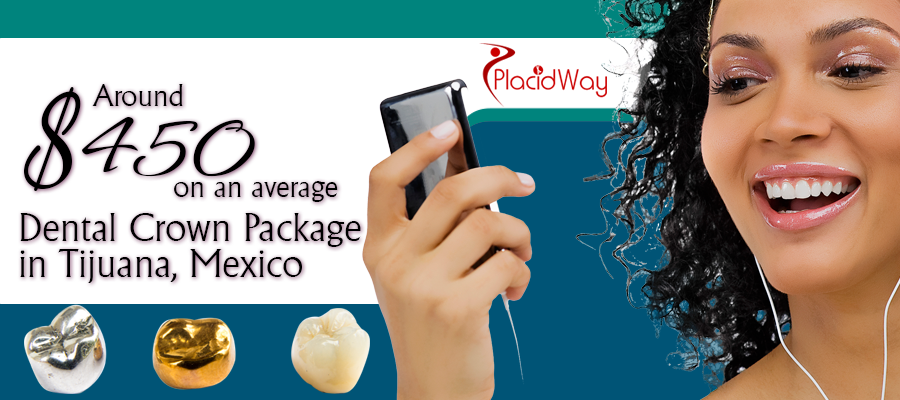 The cost of Dental Crown Package in Tijuana, Mexico is around $400 on an average