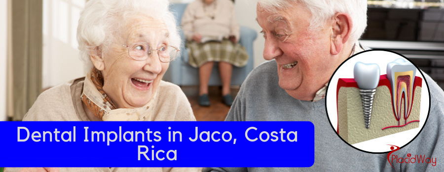 Dental Implants in Jaco, Costa Rica