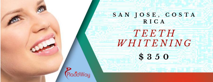 Teeth Whitening in San Jose, Costa Rica Cost