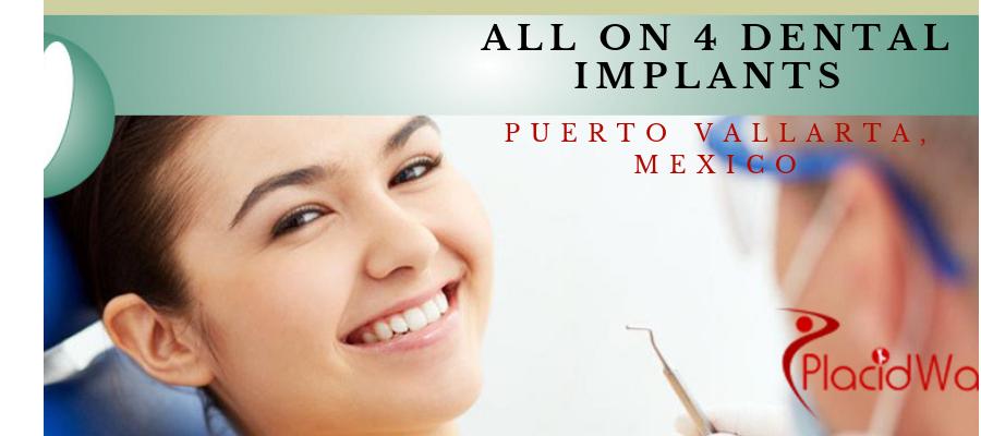 All on 4 Dental Implants in Puerto Vallarta, Mexico