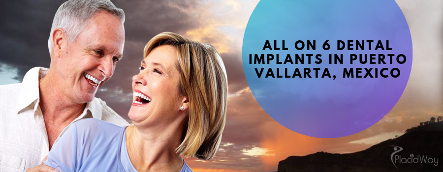 All on 6 Dental Implants in Puerto Vallarta, Mexico