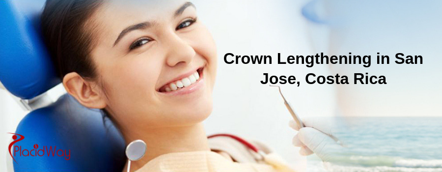 Crown Lengthening in San Jose, Costa Rica