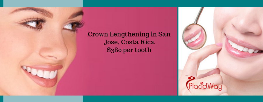Crown Lengthening in San Jose, Costa Rica Cost