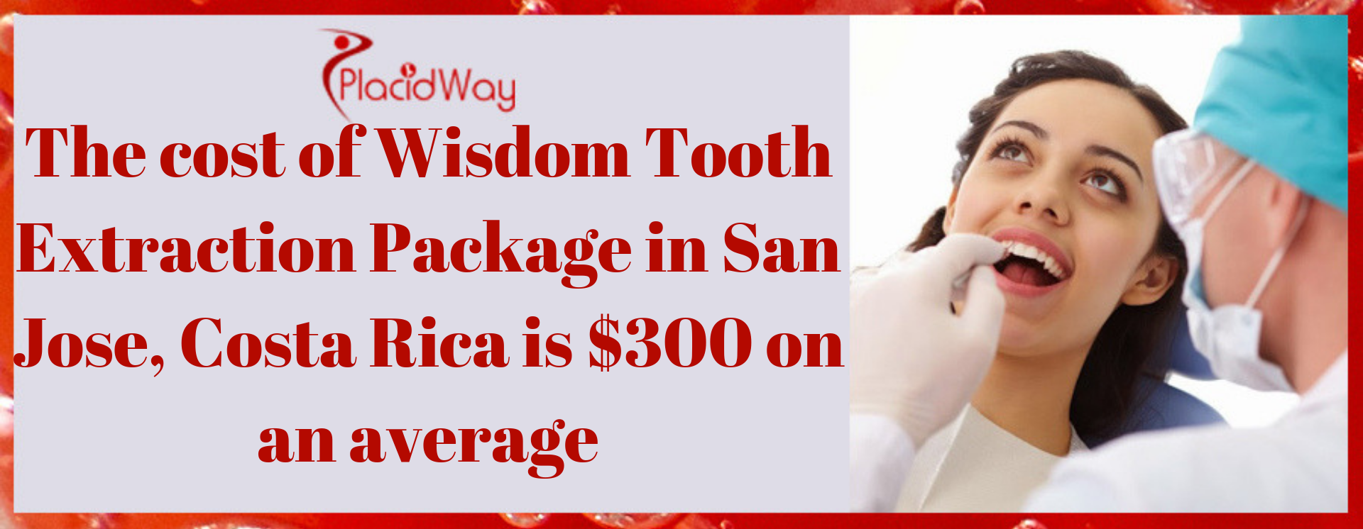 The cost of Wisdom Tooth Extraction Package in San Jose, Costa Rica is $300 on an average