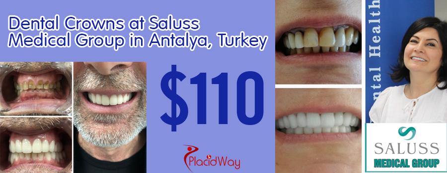 Dental-Crowns-Package-by-Saluss-Medical-Group-in-Antalya,-Turkey_price