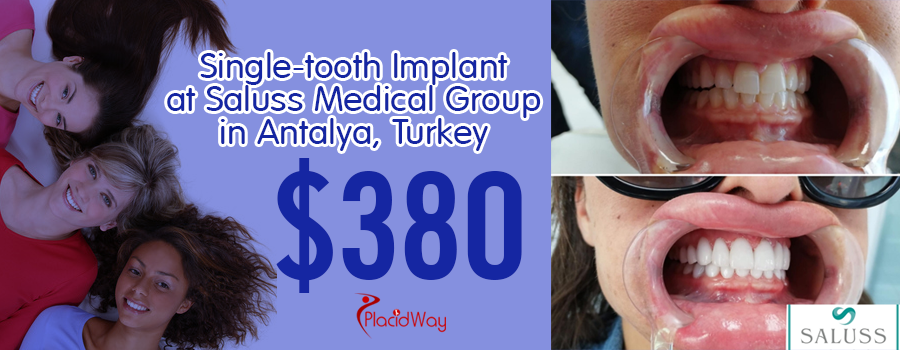 Single-tooth Implant by Saluss Medical Group in Antalya, Turkey Price