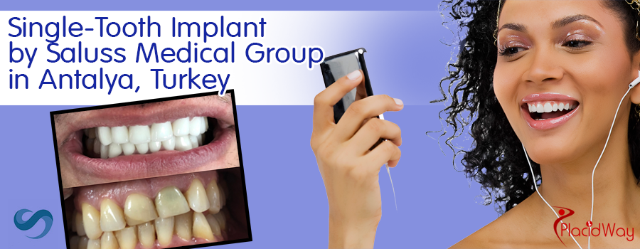 Single-tooth Implant by Saluss Medical Group in Antalya, Turkey
