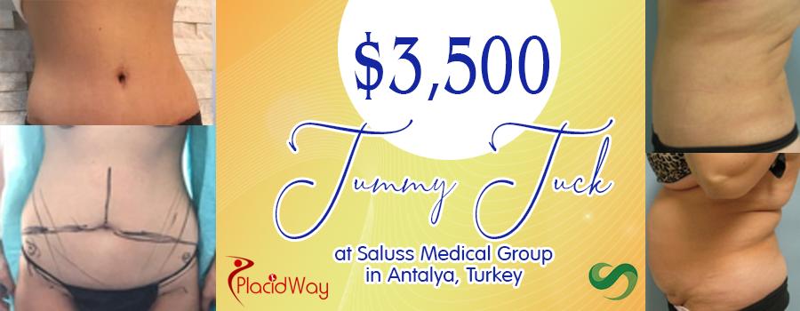 tummy-tuck-at-Saluss-in-Antalya,-Turkey