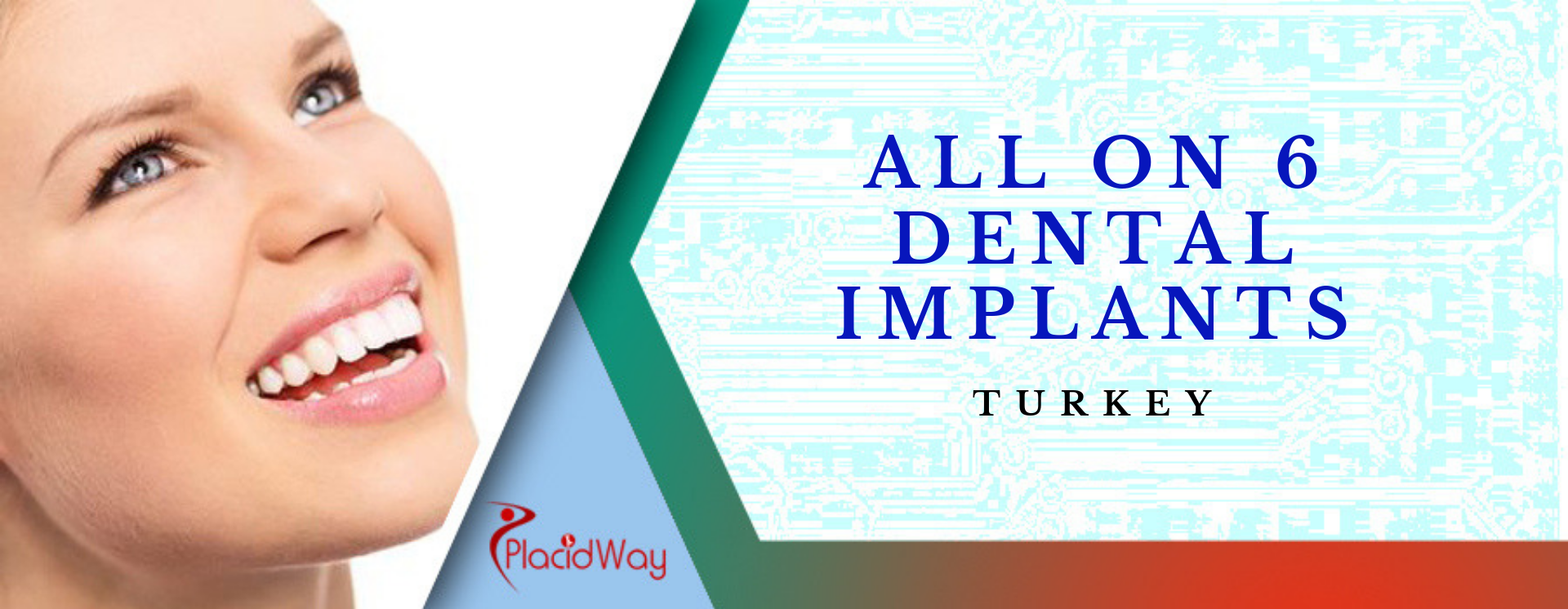 All on 6 Dental Implants in Turkey