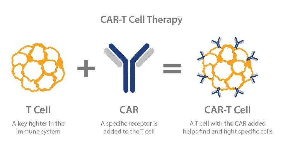 CAR - T Treatment for Cancer