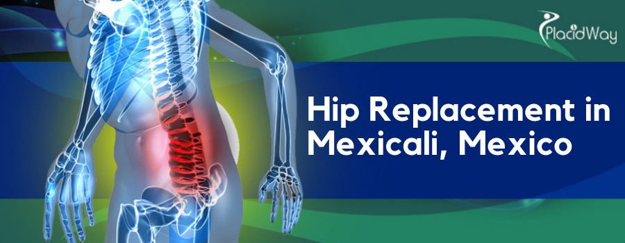 Hip Replacement in Mexicali, Mexico