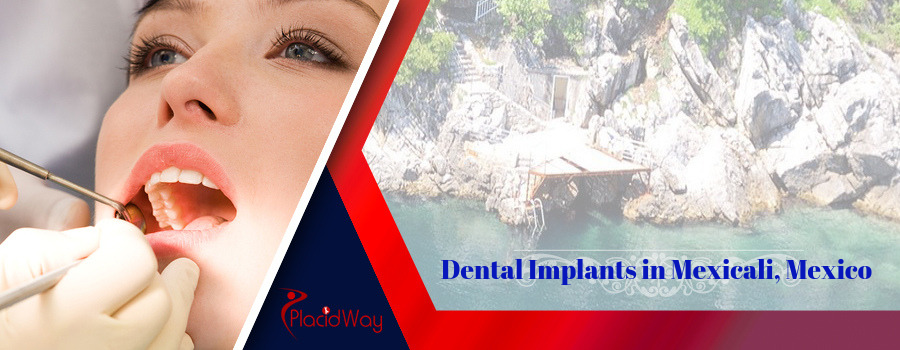 Affordable Dental Implants in Mexicali Mexico
